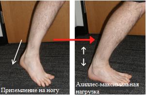 Механизм травмы - резкое изменение направления движения к максимальной нагрузке ахиллова сухожилия