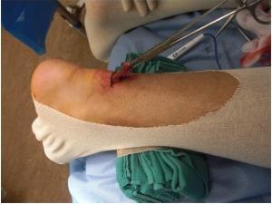 Рисунок 2: миниинвазивный метод востановления ахиллова сухожилия