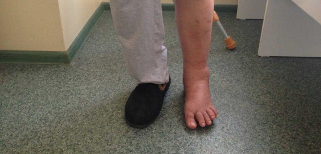 Результаты лечения голеностопного сустава и стопы